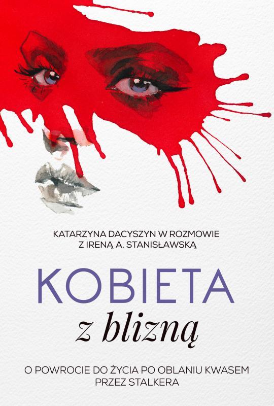 Modelka oblana kwasem, która stała się wzorem dla kobiet wcałej Polsce -
